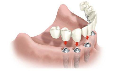 Clínica Dental Martín Alonso
