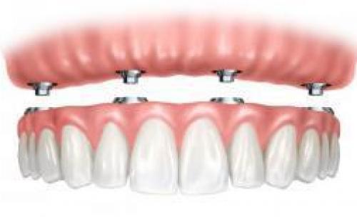 Clínica Dental Estética
