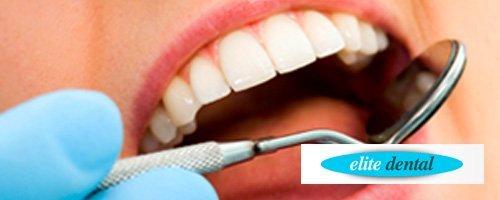 Elite Dental Getafe