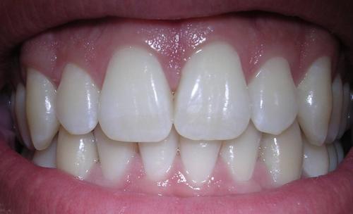 Prot sicos dentales en san lorenzo de el escorial for Clinica dental el escorial